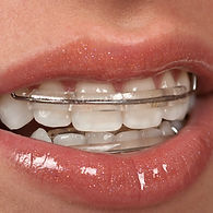 Paignton Torbay orthodontist providing 6 weeks quick inman aligners retainers