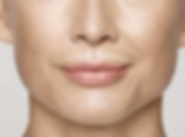 smokers lines around lips smoothened by restylane fillers