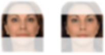 dermal fillers before and after treatment