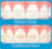 Damon Clear brackets remain clean and transparent while other clear braces become yellowish