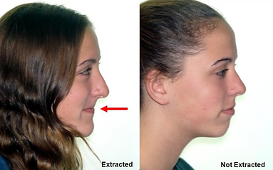 treatment results with and without extractions