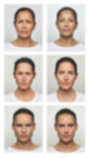 botox treatment before and after results - 3 women