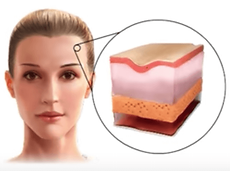 loss of skin elasticity causes wrinkles but botox treatment can erase them