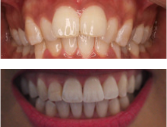 Invisalign treament before and after