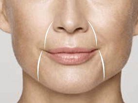 restylane fillers are very effective in filling marionette and nasolabial lines and wrinkles