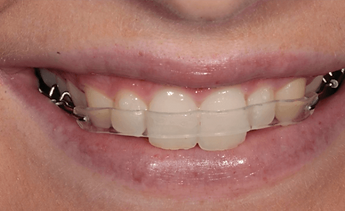 The reviews of Inman Aligner say it is almost invisible - see yourself