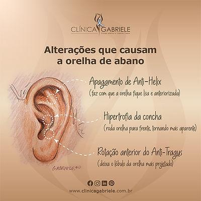 Otoplastia_Clinica_Gabriele