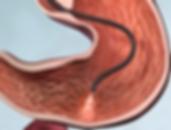 Gastroscopia in sedazione Dott. Marco Franceschin