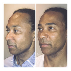 IMG_Microblading_Male_Brows