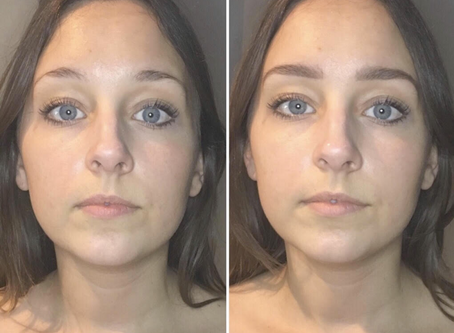 Microblading – The Process