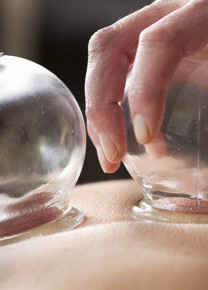 vacuum cupping treatment to patients bac