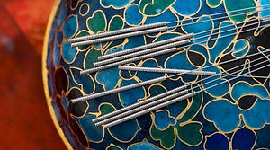 acupuncture_LS_ISP_1603097Hor.jpg