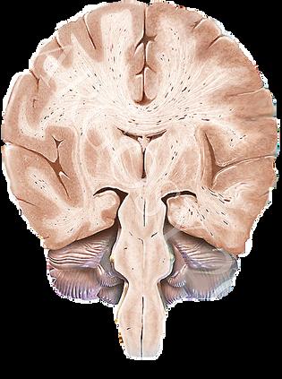 neuroimage neurocirurgia bh informaçao neuro