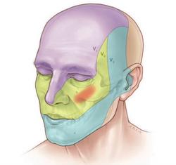 nevralgia trigeminal dr. eric grossi