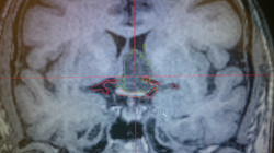 Neuronavegação no cérebro