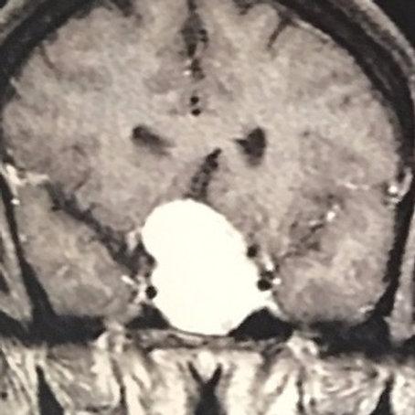 Meningioma tumor cerebral