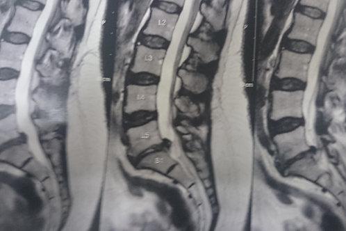 Hernia discal Lombar - Microcirurgia