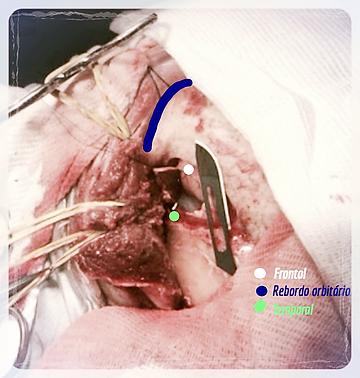 neurocirurgiao em bh Minicraniotomia pterional esq. para clipagem de aneurisma não roto de artéria cerebral média. H Mater Dei. OBS - A lâmina de bisturi número 20 de 5cm está ao lado para comparar o tamanho - Neurocirurgiao bh Dr. Eric Grossi