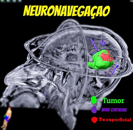 Tecnologia em Neurocirurgia