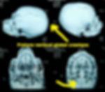 Trauma craniano caso raro Dr Eric Grossi fratura circuferencial