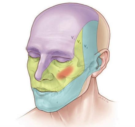 A Nevralgia trigeminal - ramos do trigêmeo V1 , V2 e V3. Existe cura com descompressão microcirúrgica