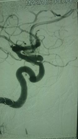 Aneurisma Cerebral