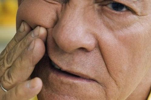 Rizotomia Nevralgia trigeminal ou do trigemeo