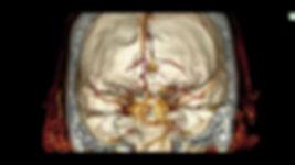 reconstrução multiplanar mostrando relação dos vasos cerebrais com o crânio, essencial para o neurocirurgião moderno