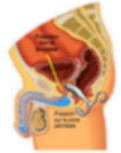 Schema-ANEROS-prostate.jpg