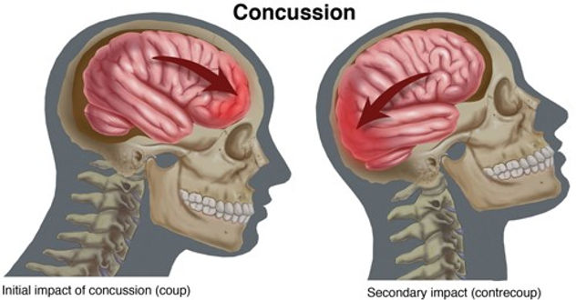 concussion primary and secondary impacts