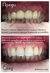 Circonium drsimeonov 2.jpg