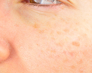 Top 3 Reasons You Have Dark Spots On Your Face