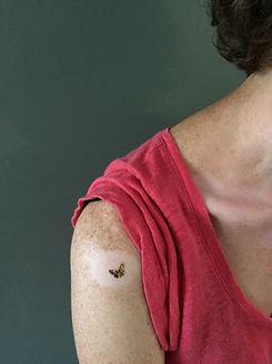 Vitiligo papillon épaule.JPG