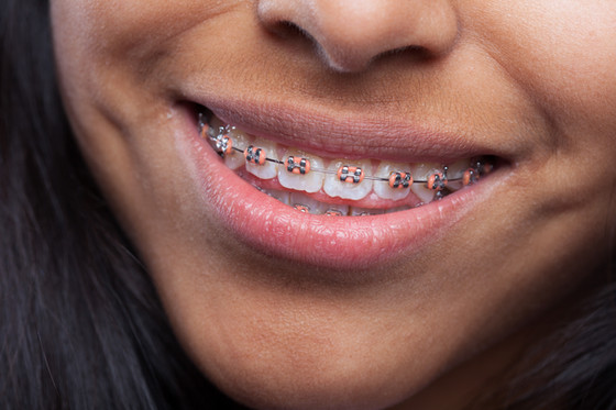 What is an Orthodontist?
