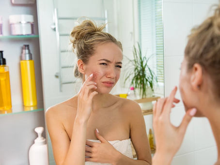 WHY THE SKIN ON THE FACE GETS IRRITATED? WHAT SOOTHES RED, IRRITATED SKIN?