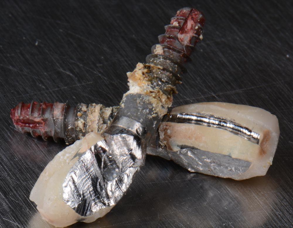 Impianti malati di perimplantite che sono stati rimossi dalla bocca