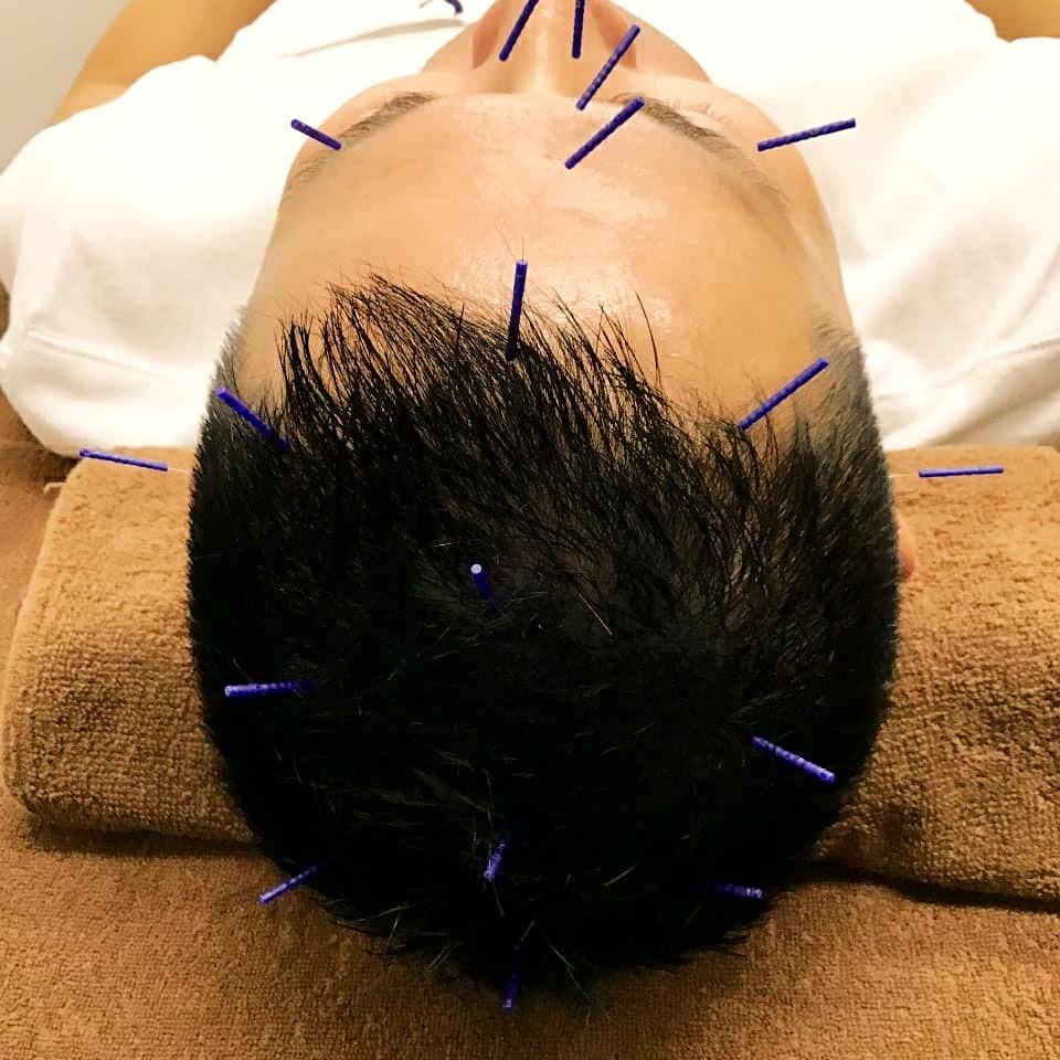 頭も大事な治療部位です。自律神経の調整、ストレスの緩和、美容効果◎