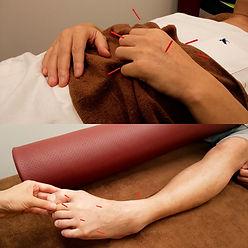 手足のマヒの鍼治療