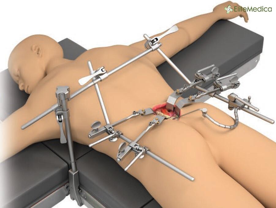 Posterior Lumbar System Thompson