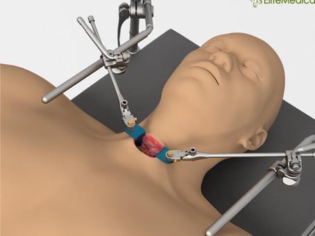 Ретракторна система Thompson для доступу до шийного відділу хребта