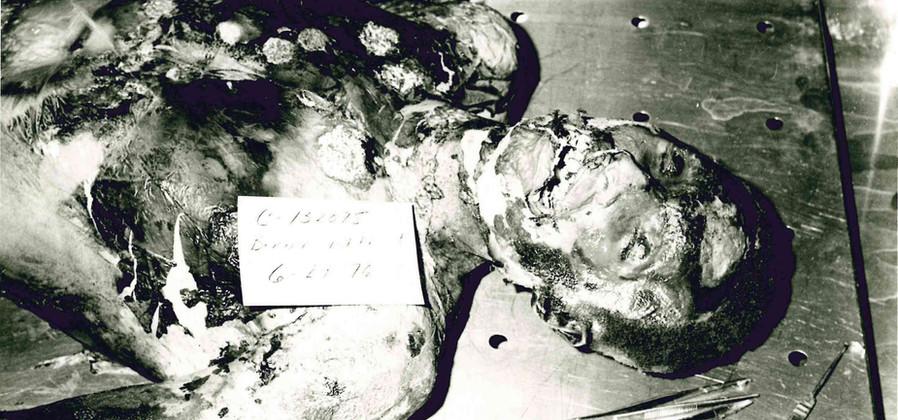 Bernard Whitehurst Autopsy Photo
