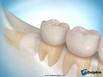 Muitas vezes os dentes do siso impactadosnão são tratados até que alguma complicação apareça, mas osestudos indicam que esses dentes, sempre que possível,devem ser removidos cirurgicamentequando o paciente é jovem, a fim de prevenir futuros problemas, como a formação de CISTOSe TUMORES. A cirurgia para remoção dos dentes do siso nãoé demorada.Passar 2 ou 3 horas na cadeira do cirurgião dentista para remover o dente do siso, nos dias de hoje, é algo inconcebível. As técnicas cirúrgicas e os instrumentais atuais, permitem a realização da cirurgia com segurança, rapidez e sem complicações. Nos dias atuais remove-se os quatro dentes do siso impactados, em uma única cirurgia, de mais ou menos 50minutos. Recomendo que essa cirurgia seja realizada no hospital com o paciente dormindo, trazendo muito mais conforto e segurança para o paciente. Por isso é importante que a cirurgia seja realizada por um especialista em cirurgia oral e maxilofacial.