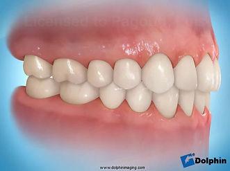 Os IMPLANTES DENTÁRIOSsão dispositivos confeccionados em titânio que são colocados no lugar das raízes do dente perdido. Eles podem ser usados para substituir desde um único dente até arcadas completas. São variadas as formas de reabilitação, como coroas unitárias, próteses parciais fixas, próteses totais fixas (protocolo) ou próteses totais removíveis retidas por implantes (overdentures).  Com seu advento, as técnicas para reabilitação oral evoluíram muito. Com elas pacientes que antes estavam condenados a utilizarem próteses totais removíveis (dentaduras) pelo resto de suas vidas, podem ter de volta dentes fixos, com estética e função muito superiores, devolvendo a eles qualidade de vida.