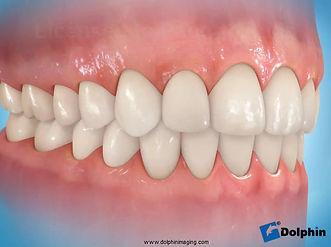 A necessidade de correção de pequenos ou de grandes defeitos ósseos, através da reconstrução óssea dos maxilares – enxertos ósseos, para colocação de implantes dentáriose posterior reabilitação, tornou-se rotineira na prática da cirurgia maxilofacial. As técnicas de enxerto ósseo e de reconstrução parcial ou total da maxila e da mandíbula e das áreas doadoras são avaliadas, basicamente, de acordo com o grau de perda óssea, do planejamento cirúrgico-protético e das condições de saúdedo paciente.