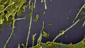 Covid-19: variante britânica não causa doença mais grave, diz estudo