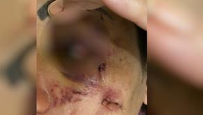 Homem é suspeito de agredir a mulher a pauladas e a abandonar seminua em frente a hospital