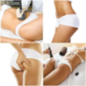 tratamientos-de-cavitacion-e147240051791