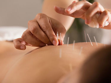 what_does_acupuncture_treat-1024x768.jpg