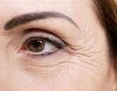 Eye wrinkle_edited_edited_edited_edited_