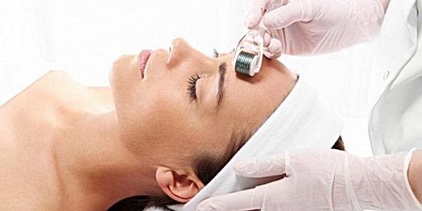 Microneedling Treatments Asthetik London